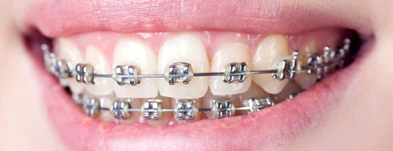 How much do braces typically cost with insurance