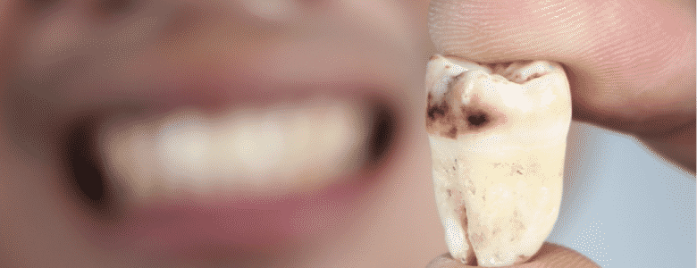 What Health Problems Can Tooth Decay Cause