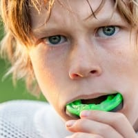 5 Reasons You Should Wear A Sports Mouthguard
