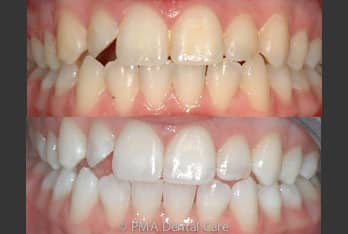 Australia dental burpengary talks teeth whitening if you believe that whitening your teeth is something that you would like to do for yourself please come in and see us today or for easier convenience book solutioingenieria