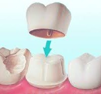 Crown for your tooth
